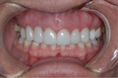 Restorative Dental Implants