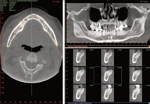 CT Dental Scan