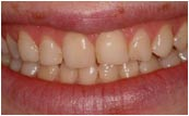 Prepless Veneer - Before